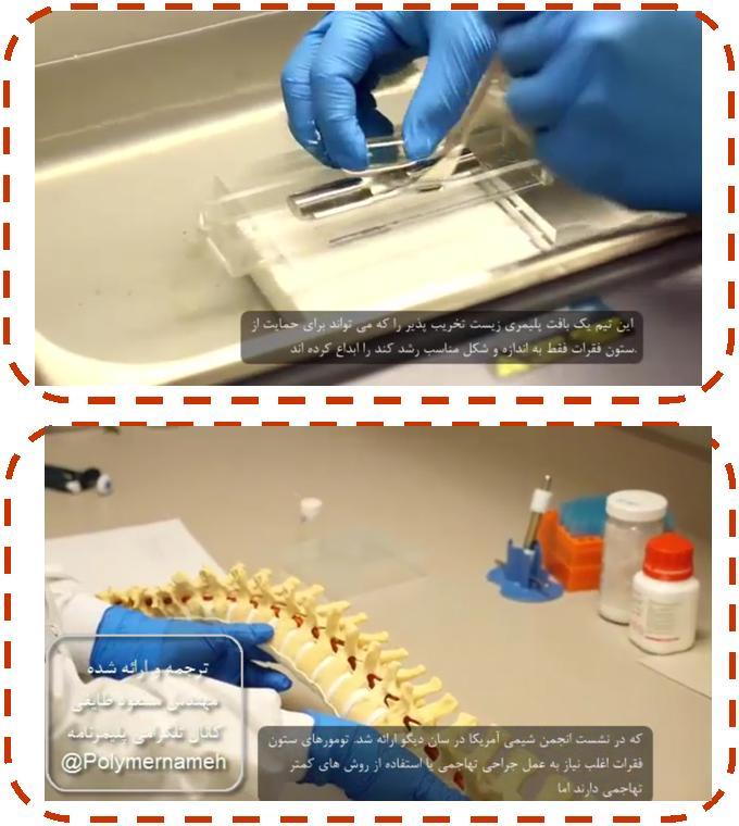 مواد اسفنجی به ترمیم ستون فقرات کمک می کند
